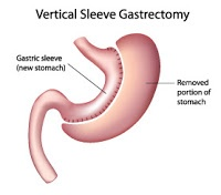 Sleeve gastrectomy technique of Bariatric or Weight loss surgery
